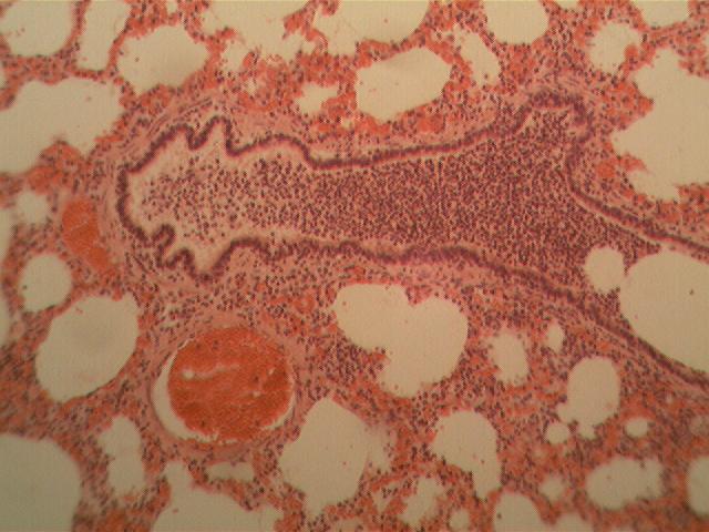 Патологічна анатомія органів дихання ураження органів дихання запального характеру Запалення верхніх дихальних шляхів