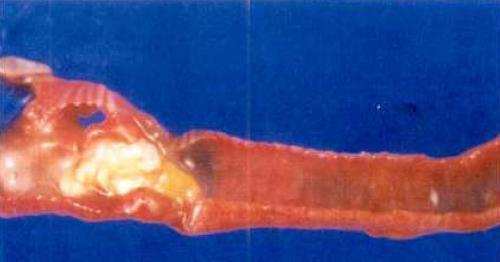 Інфекційний Бронхіт (ІБК)
